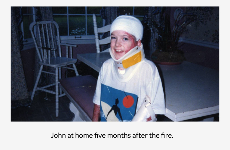 John at home five months after the fire